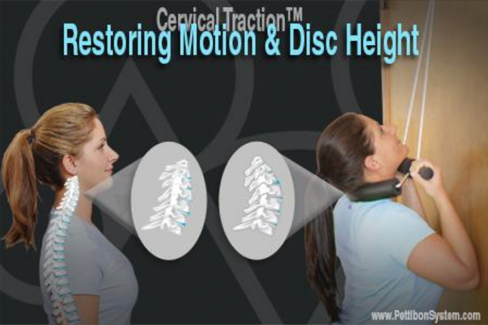 Restoring Motion & Disc Height
